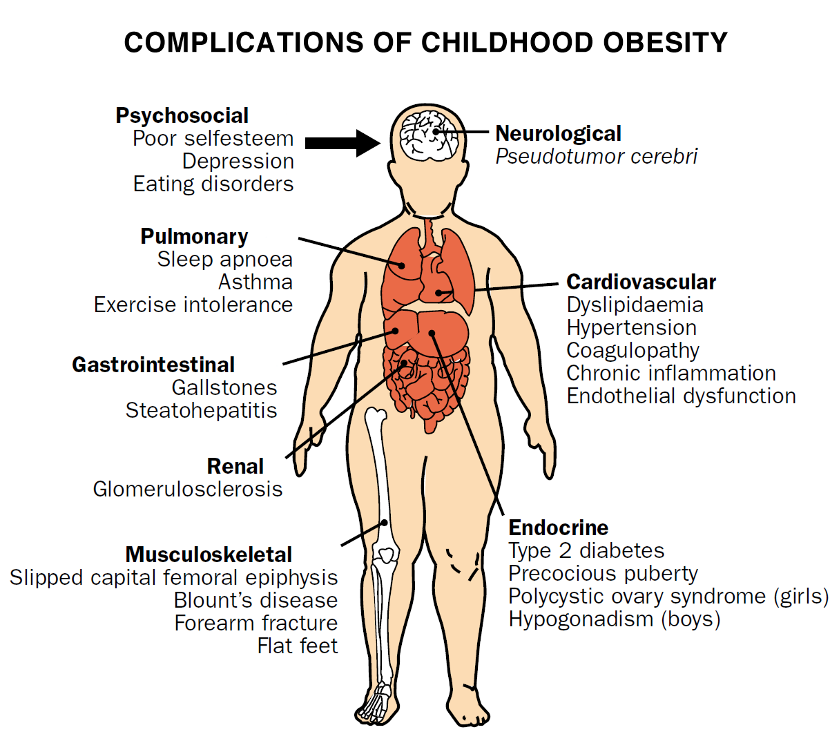 Complications from Childhood Obesity